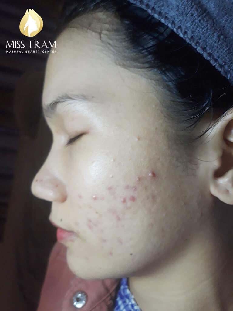 Before and After Using Acne Treatment Technology and Whitening Skin 3