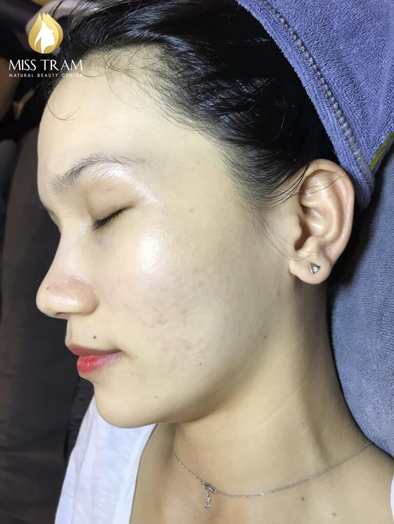 Before and After Using Acne Technology and Brightening Skin 4