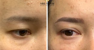 Before and After Sculpting You Scrape Natural Beauty Overcoming Short Brow 21
