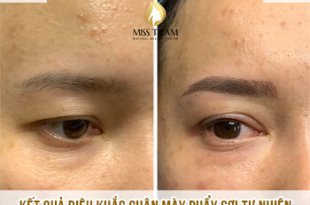 Before and After Sculpting You Scrape Natural Beauty Overcoming Short Brow 32