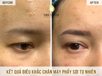 Before And After Sculpting You Communicate Naturally Beautiful Fiber Overcoming Short Brow 1