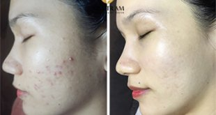 Before and After Using Acne Treatment Technology and Whitening Skin 10
