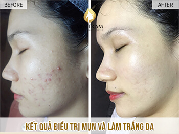 Before and After Using Acne Treatment Technology and Brightening Skin 1