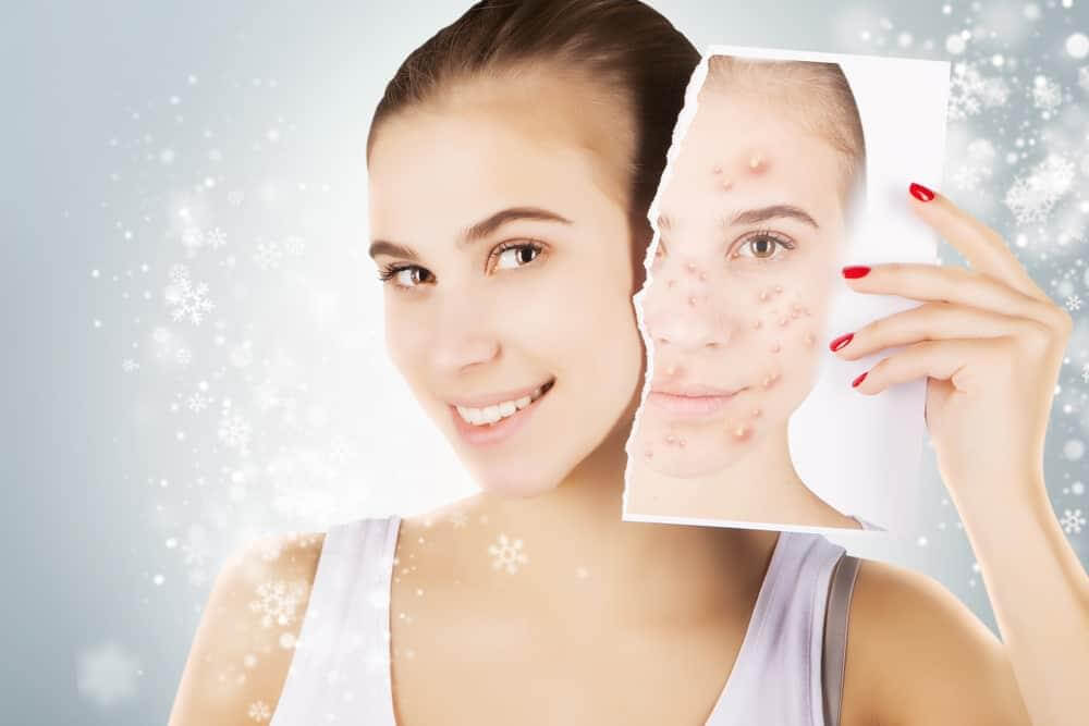 How long will the acne treatment be complete 2