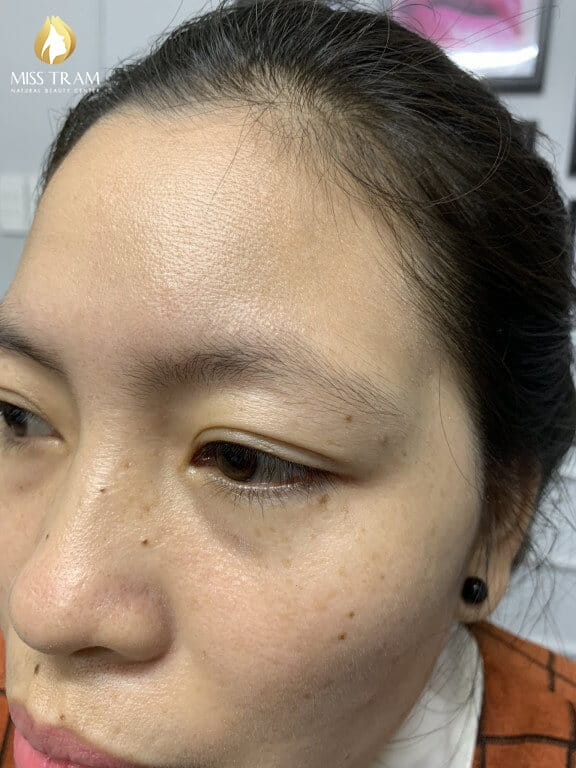 Before And After Sculpture Natural Eyebrow Queen 2
