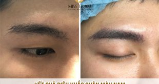 Before And After Sculpting Eyebrow Beauty For Men 49