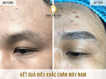 Before and After Beauty Eyebrow With Sculpture Technology 1