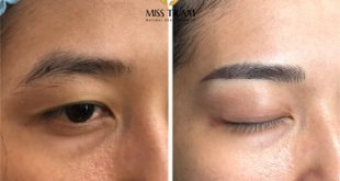 Before And After The Eye Sculpting Process Completed 27