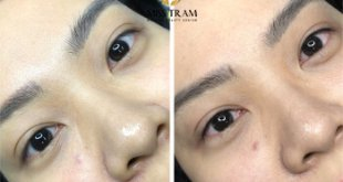 Before And After Picture Of Naturally Open Eyelid Spray 7
