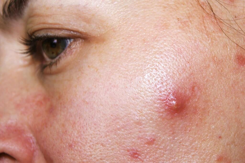 How long will acne last for 4 minutes?