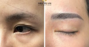 Before And After Sculpting And Bracing His Eyebrows 16