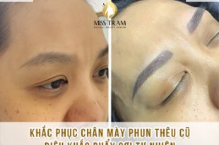 Before And After Remedy Eyebrow Spraying Old Embroidery Sculpting New Eyebrows 6