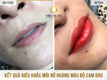 Before and After Sculpture Orange Lips Queen For Guests 1