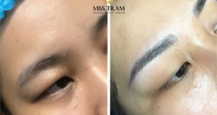 Before And After Repairing The Small Eyebrow With Sculptures 52