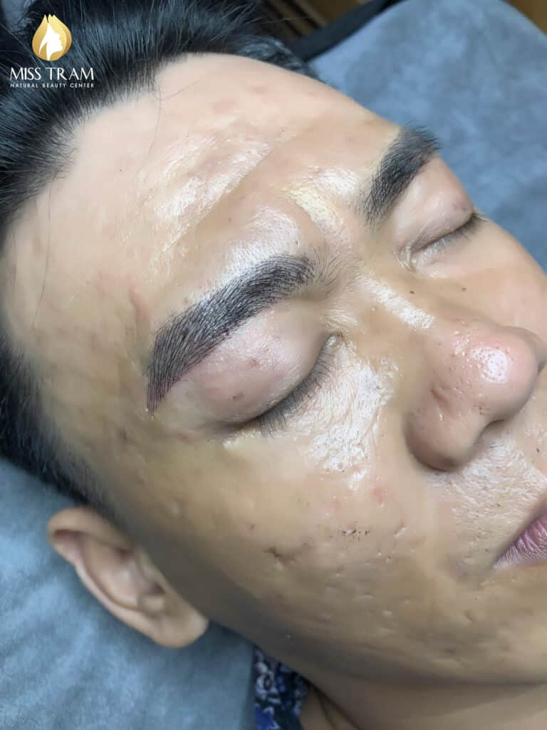 Before and After Beauty Male Eyebrows Using Sculpture Technology 5