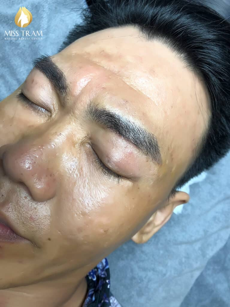 Before and After Beauty Male Eyebrows Using Sculpture Technology 4