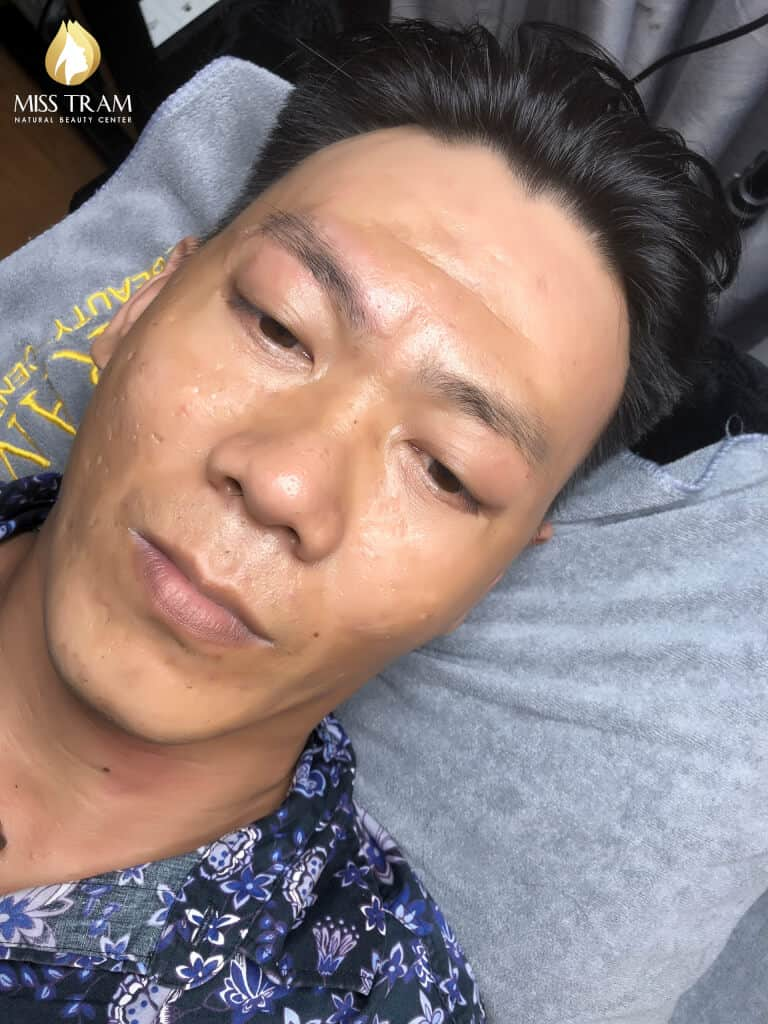 Before and After Beauty Male Eyebrows Using Sculpture Technology 2