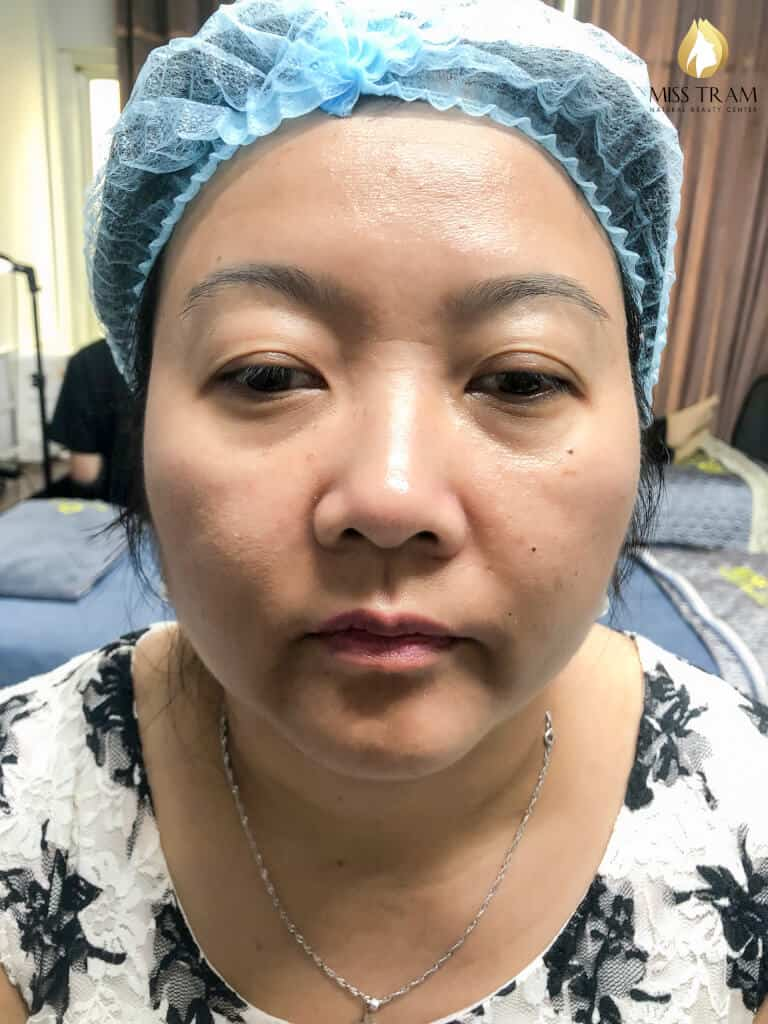 Before And After Treating Your Old Eyebrow - Sculpting Queen Brow For Female 2