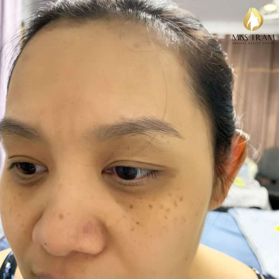 Before And After Remedy Eyebrow Spraying Old Embroidery Sculpting New Eyebrows 2