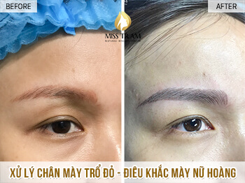 Before And After Processing Red-eyed Boy - Sculpting Beautiful Queen Eyebrow 1