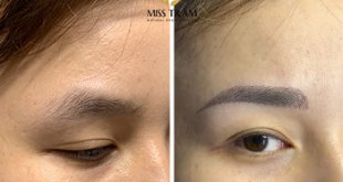 Before and After Beauty Results Eyebrows by Sculpture Technology 6