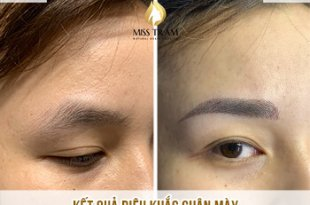 Before and After Beauty Results Eyebrows by Sculpture Technology 9