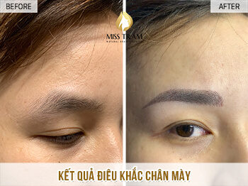 Before and After Beauty Results Eyebrows by Sculpture Technology 1