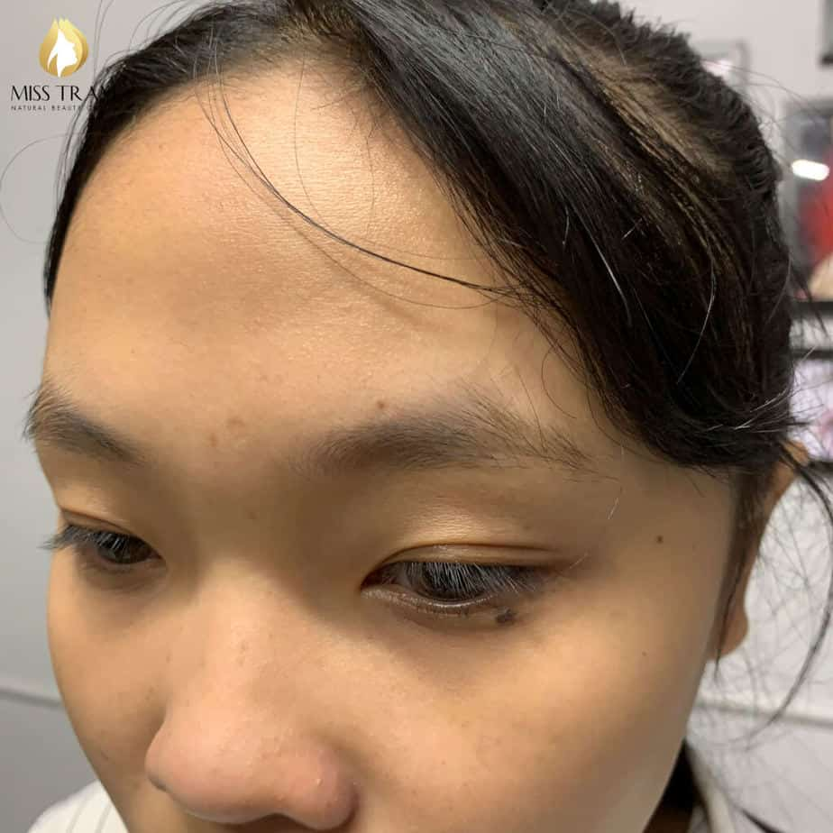 Before and After Sculpting Eyebrows Commemorating the Standard Eyebrows 2