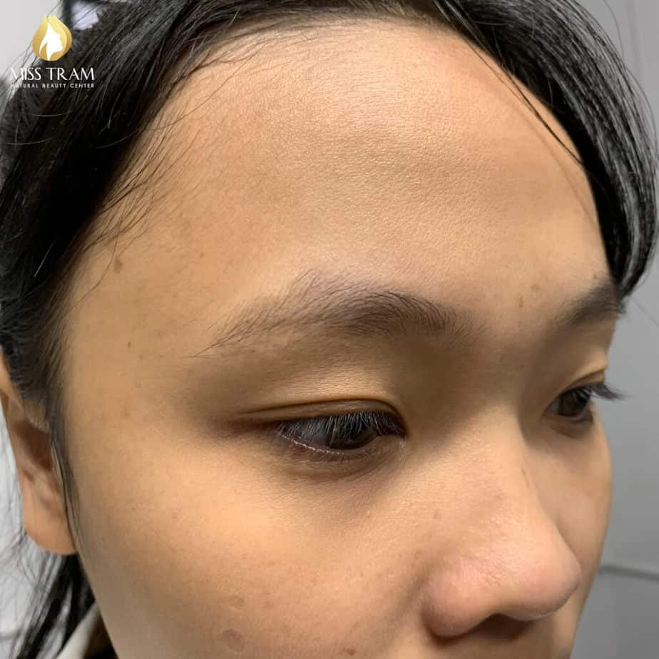 Before And After Sculpting Eyebrows Committing Fiber For Standard Body Shaping 3