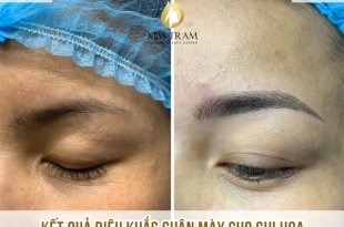 Before and After Sculpture Technology For Beautiful New Eyebrows 1