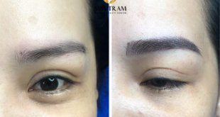 Before and After The Standard Natural Female Eye Sculpture Results 39