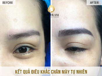 Before and After The Standard Natural Female Eye Sculpture Results 1
