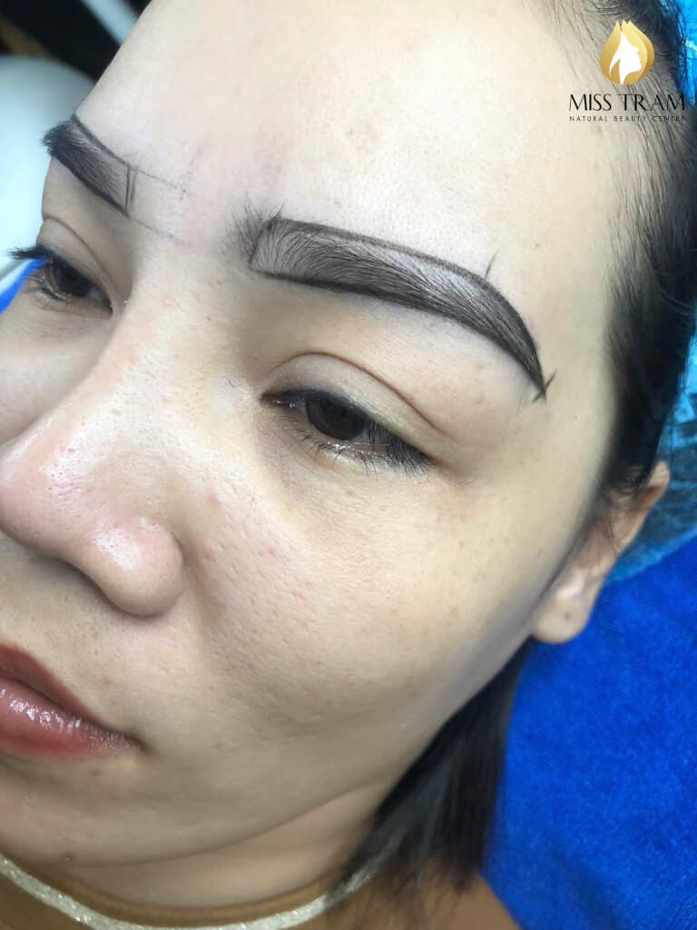 Before and After The Standard Natural Female Eye Sculpture Results 3