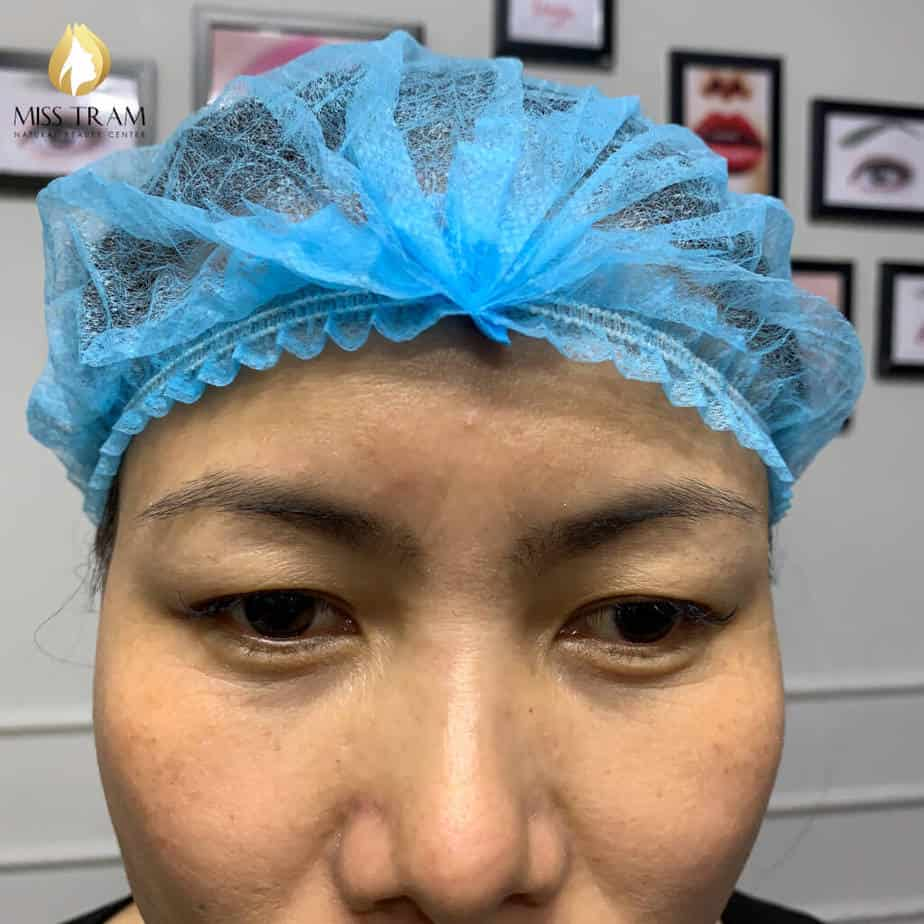 Before and After Sculpture Technology For Beautiful New Eyebrows 2