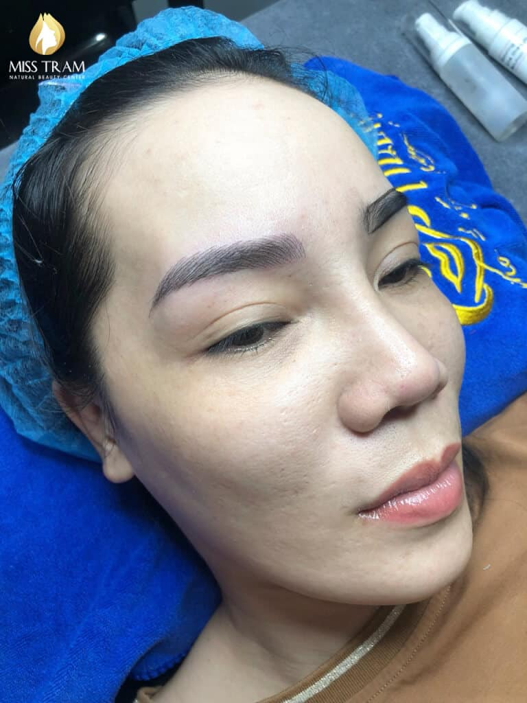Before and After The Standard Natural Female Eye Sculpture Results 4