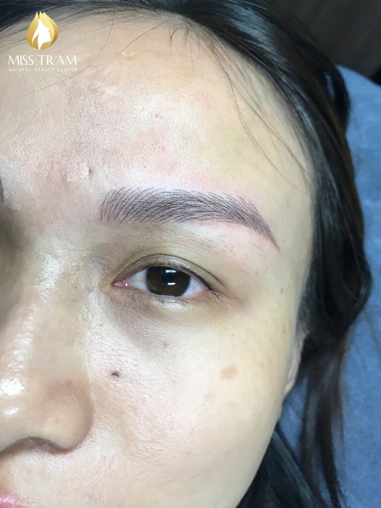 Before And After Handling Red-eyed Boy - Sculpting Beautiful Queen Eyebrow 5