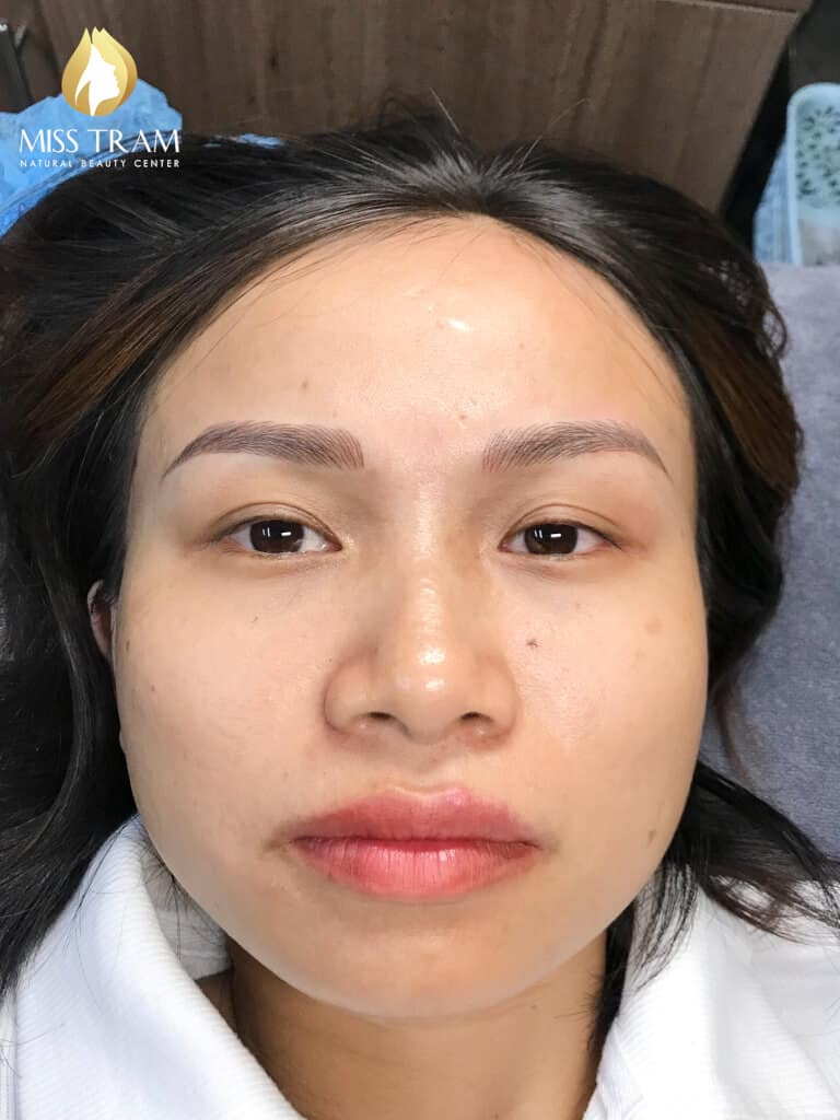 Before And After Processing Red-eyed Boy - Sculpting Beautiful Queen Eyebrow 6