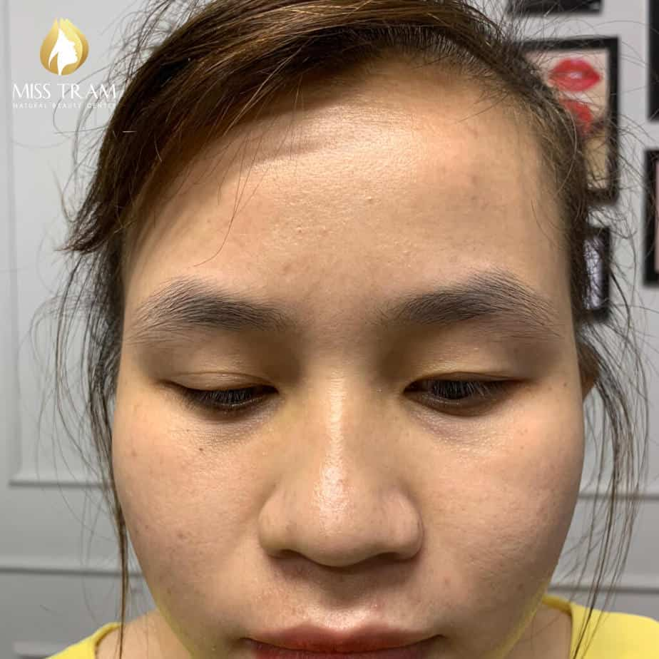 Before and After Beauty Results Eyebrows by Sculpture Technology 2