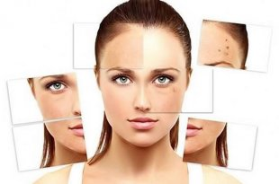 Skin Factors Affected by What Factors 8