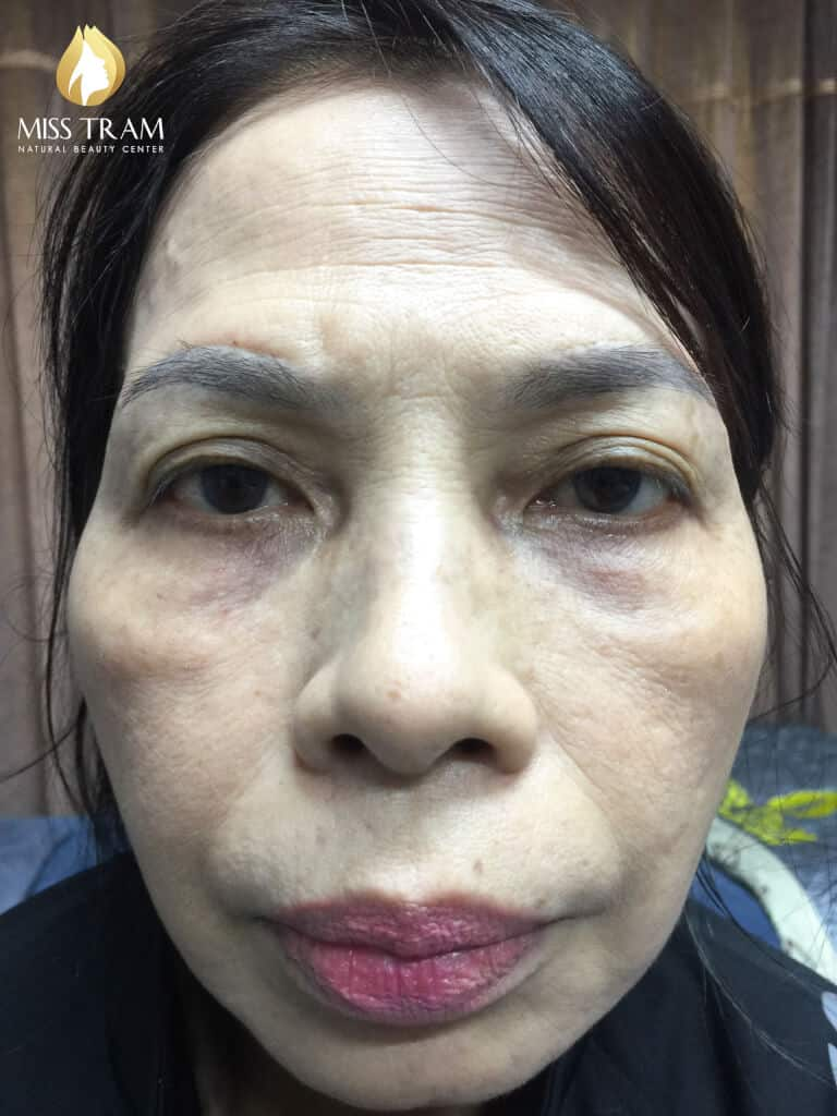 Before And After Old Eyebrows - Sculpting Combined Shading Beautiful 2