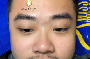 Before and After Sculpture Technology Eyebrow For Male 1
