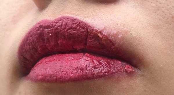hiện tượng mưng mủ phồng rộp khi phun môi