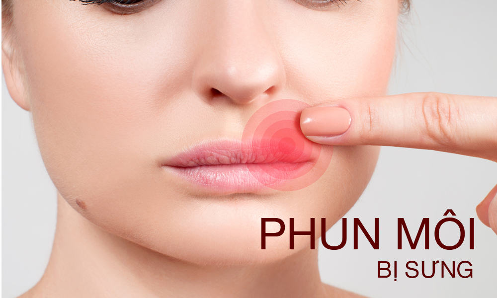 festering blisters when spraying lips