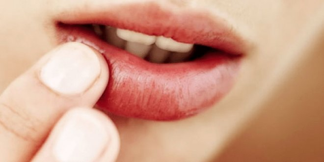 Why There Is Pus, Blistering When Spraying Lips 1