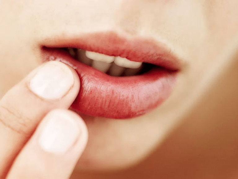 Why There Is Pus, Blistering When Spraying Lips 5