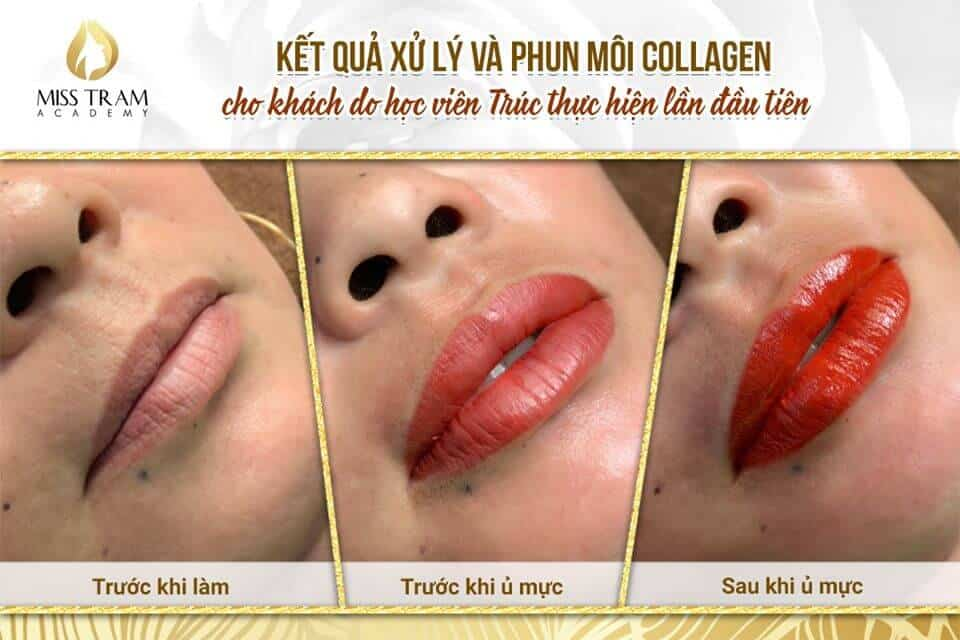 Student Collagen Treatment And Lip Spray Photo For Customer 2
