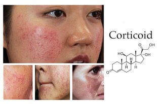 Identify Corticoid-Infected Skin And Treatment 1
