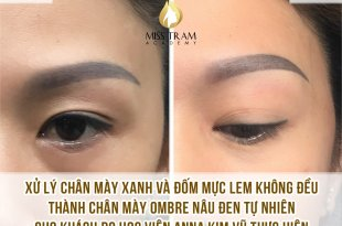 Practitioner Anna Kim Vu locks professional eyebrows on a model Treating blue eyebrows + uneven ink spots into natural dark brown Ombre eyebrows