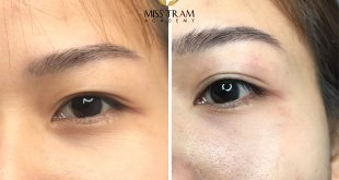 Photo On Sample Opening Eyelid Puff - No swelling, No pain 4