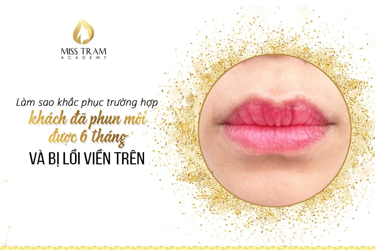 How to overcome the case that guests have sprayed their lips for 6 months and protruded the upper border